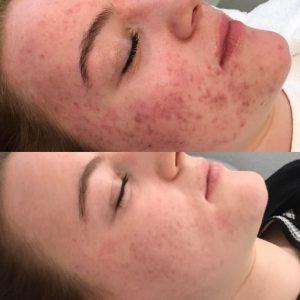 bio Peel Salonnepro gezichtsbehandeling